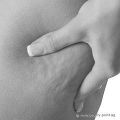 Kurzinformation zur Cellulite Behandlung